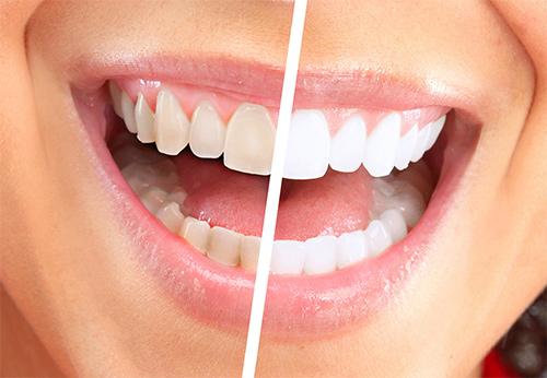 Teeth whitening Milton Keynes